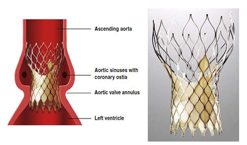 Zastawka aortalna Medtronic Core Valve - jej prawidłowe położenie po TAVI