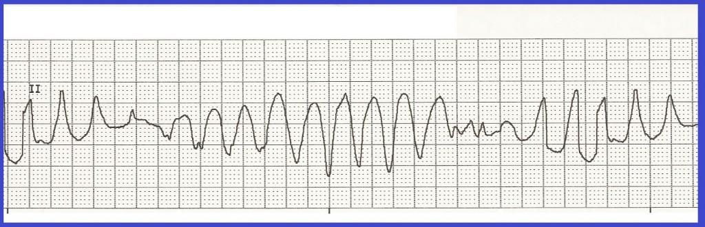Torsades de Pointes - balet serca - groźna arytmia komorowa wyzwalana min przez niedobór potasu i magnezu