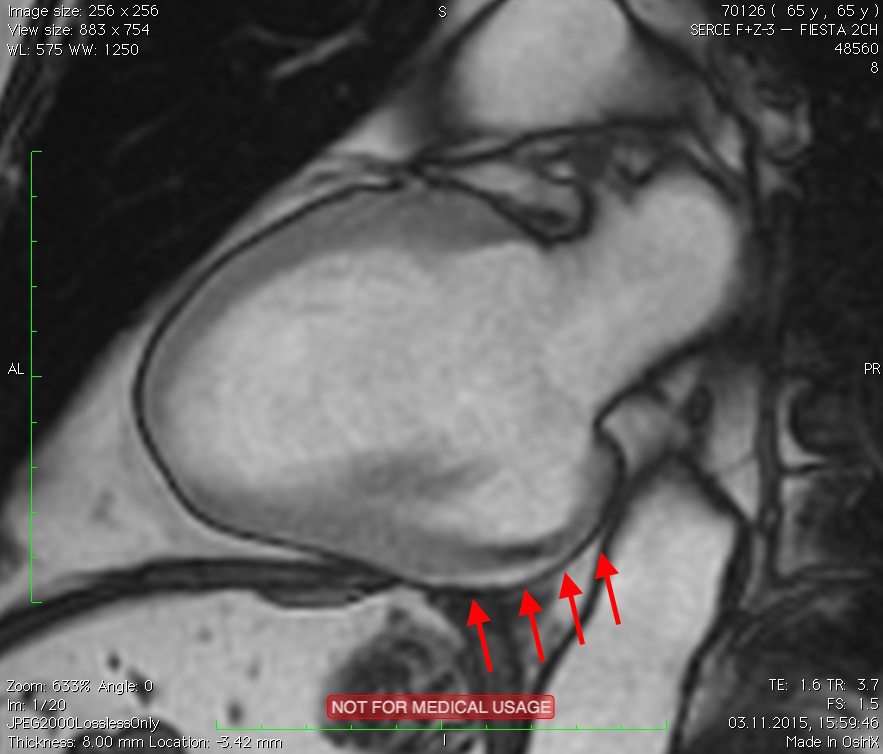 Projekcja dwujamowa - tętniak ściany dolnej i tylnej