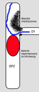Manewr oparcia prowadnika na wypełnionym w GPZ balonie