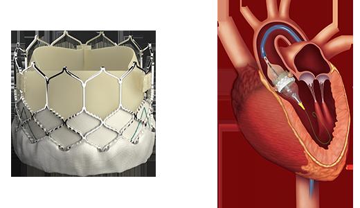 Przezskórnie wszczepiana zastawka Sapien 3 i rycina obrazująca implantację (rozprężanie jej na baloniku)